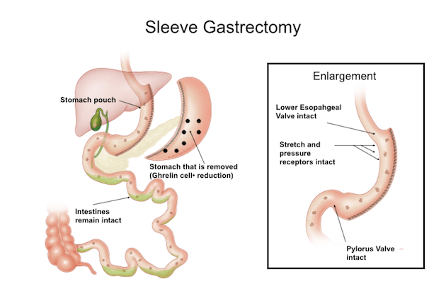 sleeve gastrectomy surgery - gregg h jossart, md | cpmc, Skeleton